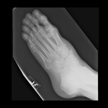 Cuboid Fractures right